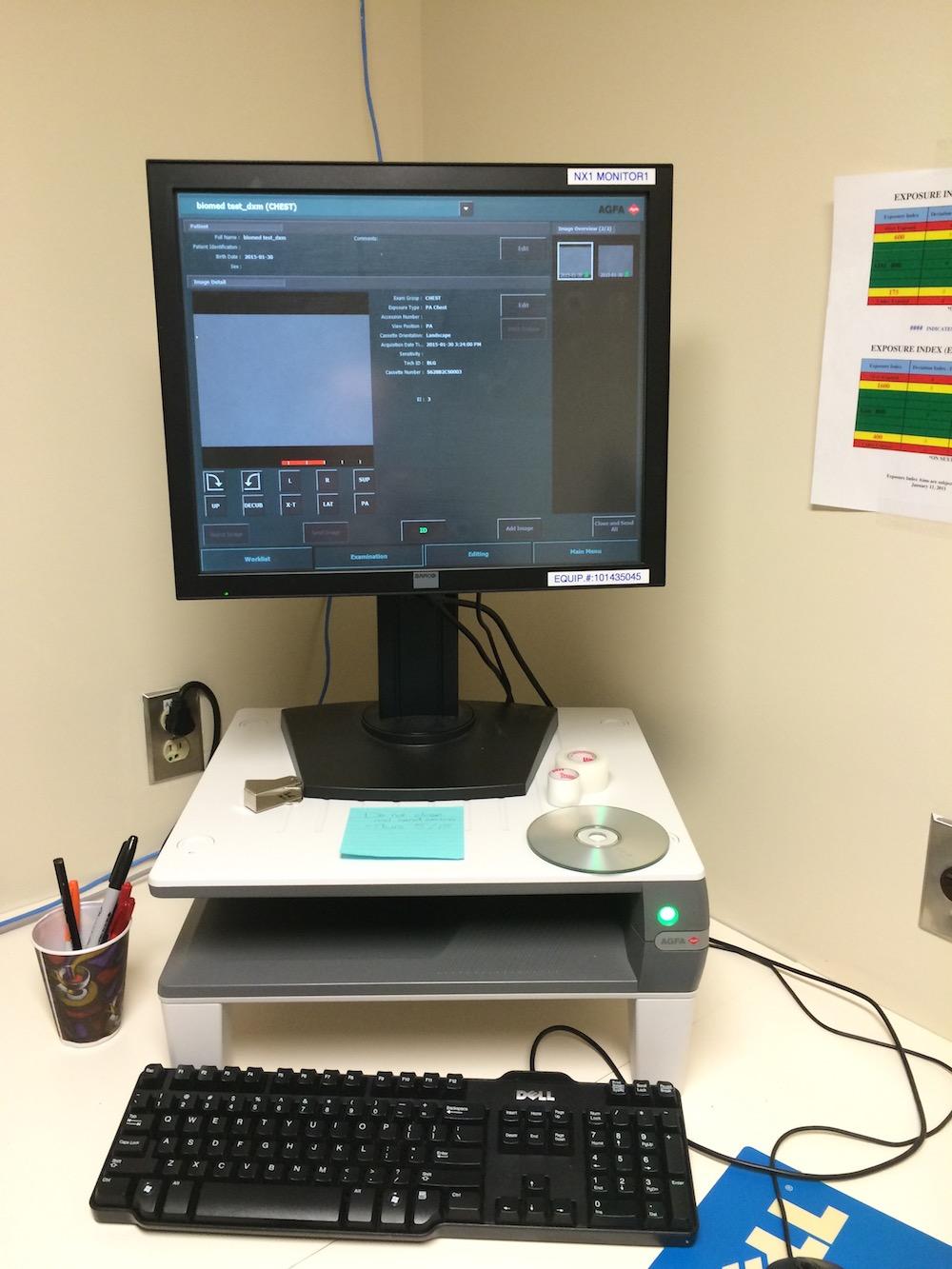 Computerized Radiography Digitizer